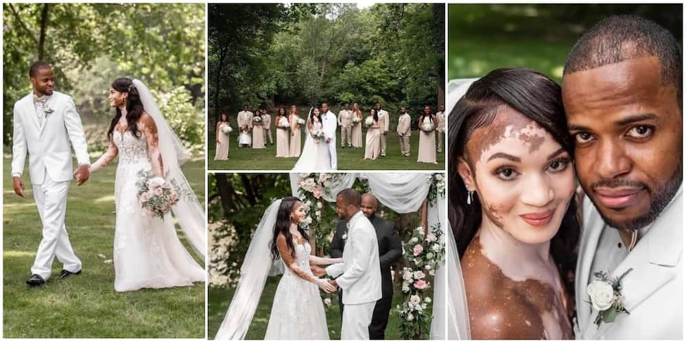 Beautiful photos of a wedding involving a man and his vitiligo lover Photo Credit: @pass_man