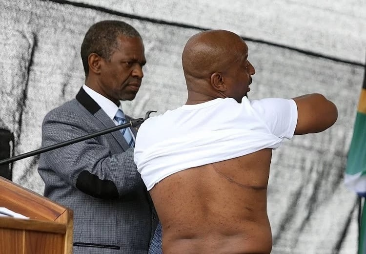 Prince Zulu displayed the large scars on his body caused by TB. Source: Sowetan Live