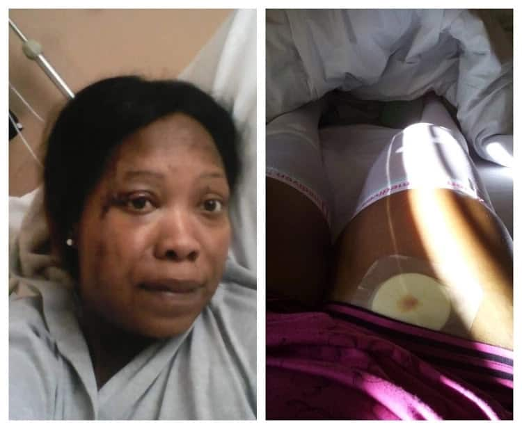 Survivor Skolopad opens up about her nearly fatal car accident