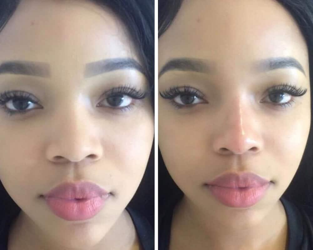 Faith Nketsi plastic surgery