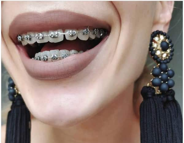 Invisalign South Africa