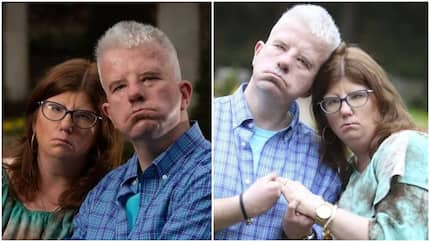 Couple who can't smile due to condition fall in love after meeting
