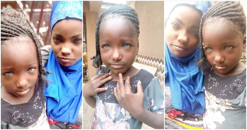 Father reportedly abandons daughters over their unique eye colour (photos)