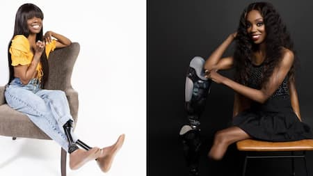 Gorgeous woman who lost legs and fingers after falling sick becomes a model