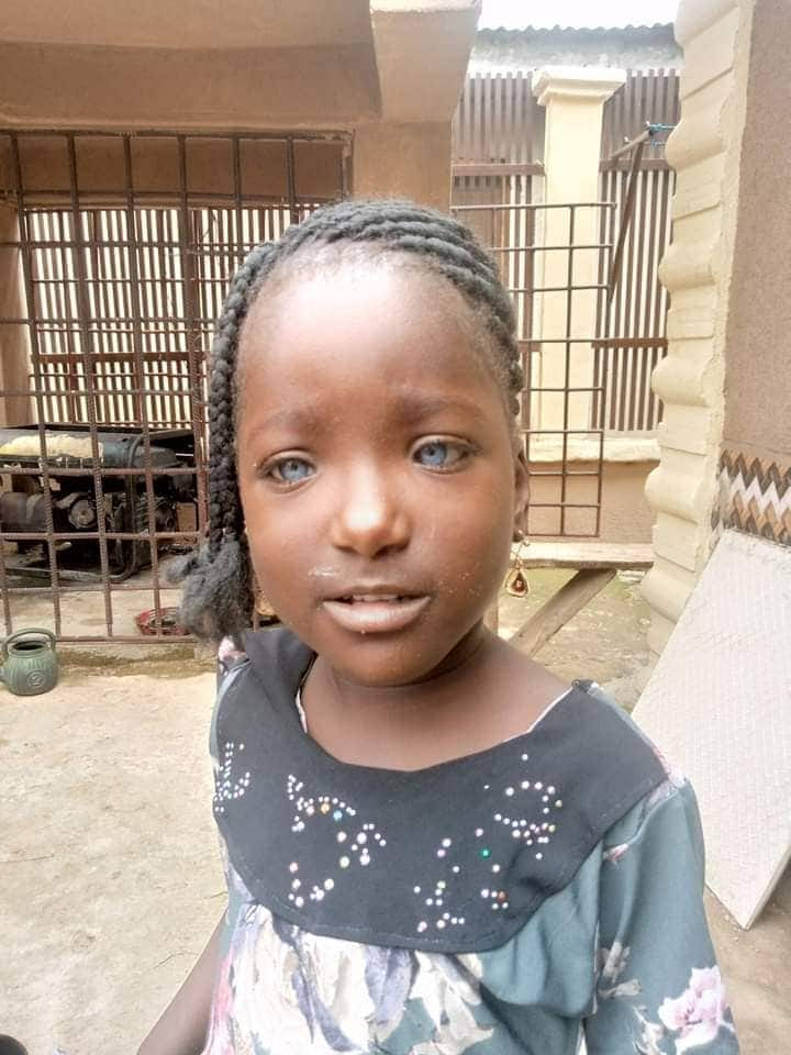 Nigerians rally round girl whose father rejected due to her blue eyes