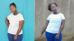 "Burn survivor inspires SA with her powerful story: ""I'm not ashamed"""