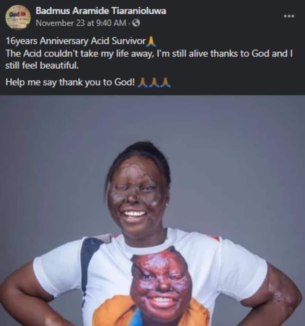 Nigerian acid survivor celebrates 16 years of being alive after unfortunate incident