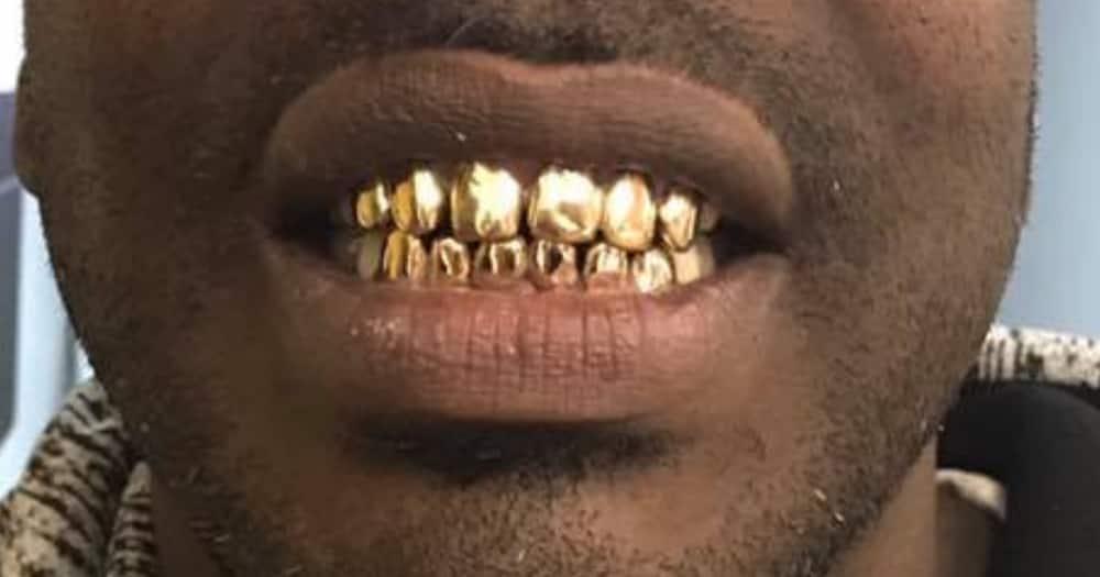 Gold teeth, dentist